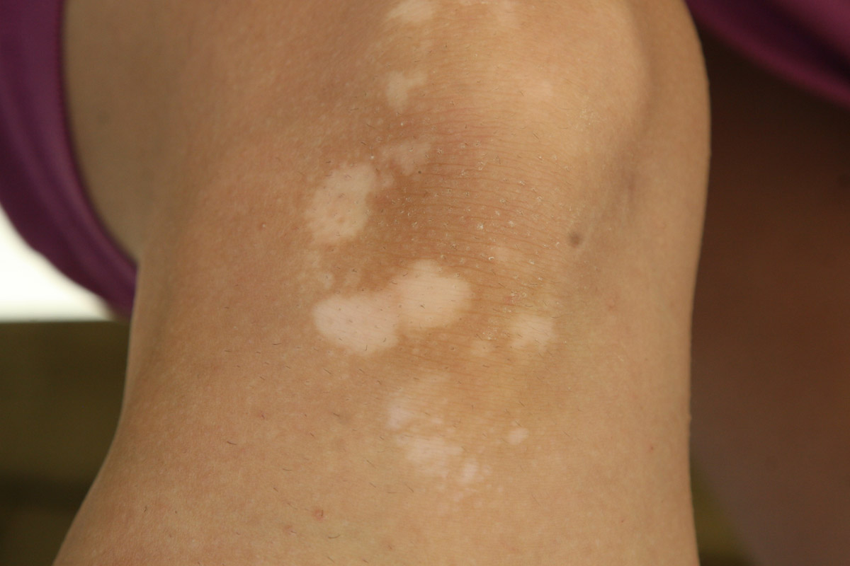 how to avoid skin vitiligo