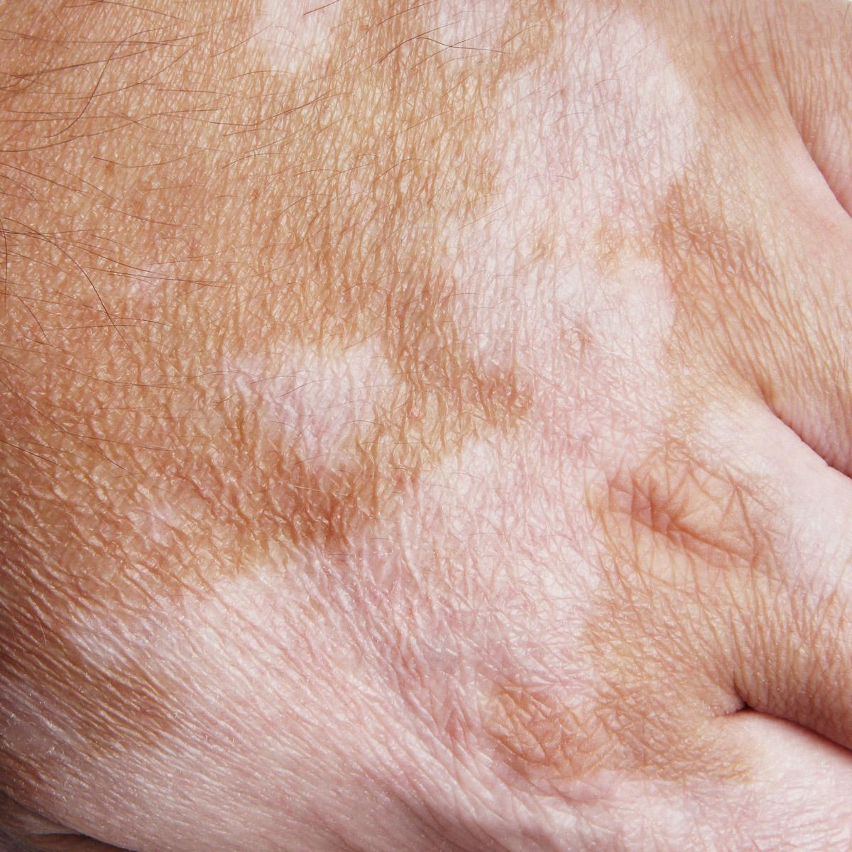 Les taches de pigment les mains le traitement avec les moyens nationaux